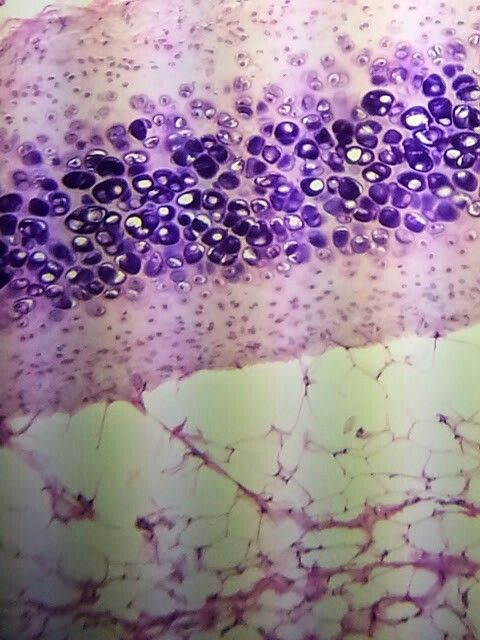 Hyaline Cartilage Under Microscope