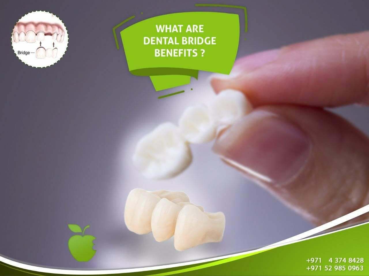 The benefits of dental bridge are: - Gives a good and beautiful ...