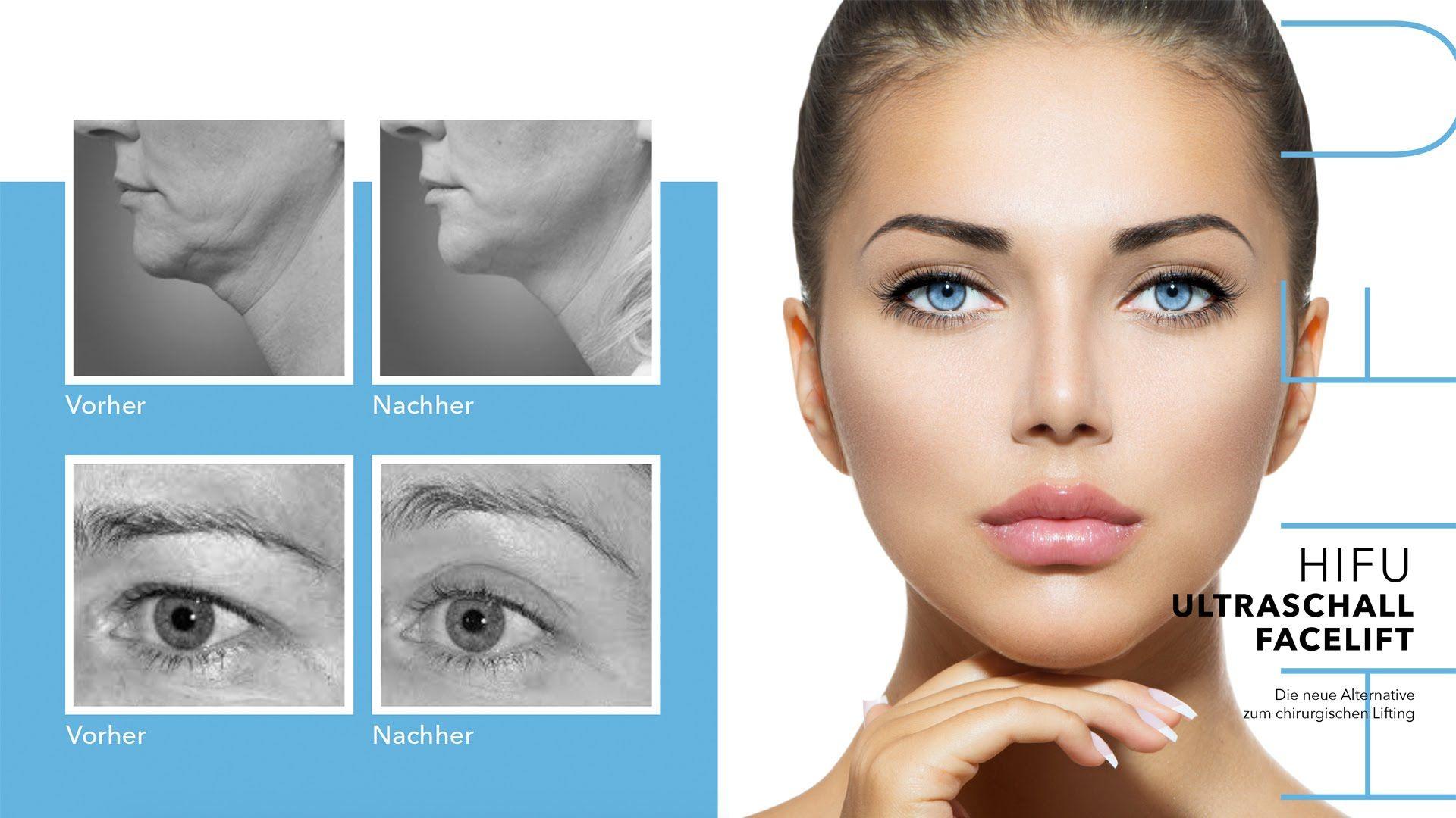 Hifu Ultraschall Facelift Mit Ultraschall Gesicht Behandeln Good Skin Permanent Makeup Aging Skin