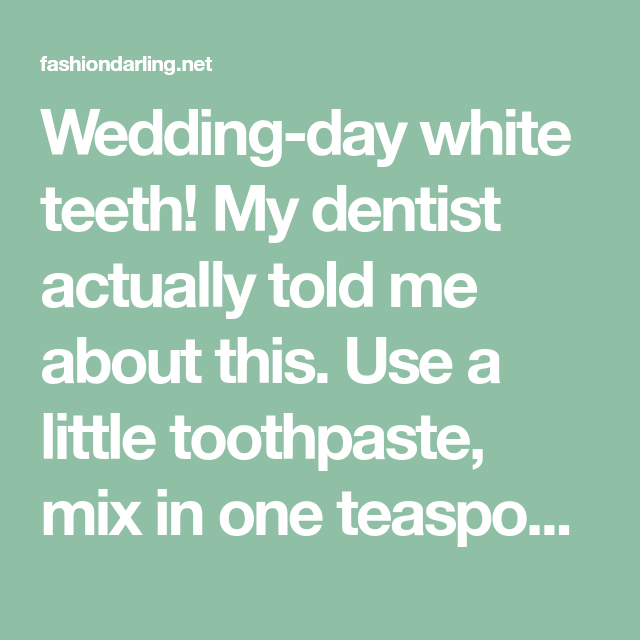 Wedding White Teeth: Wedding-day White Teeth! My Dentist Actually Told Me About
