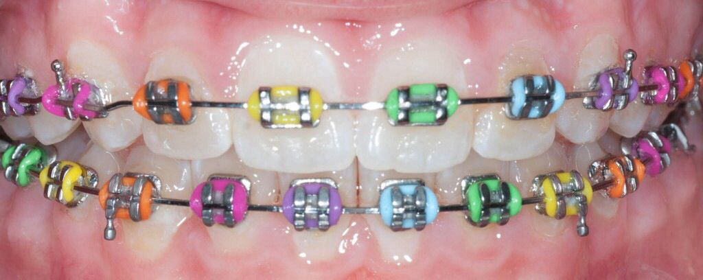 Rainbow braces so want to get these if i get braces braces rainbow braces so want to get these if i get braces solutioingenieria Images