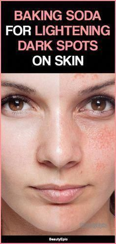 Tips on how to Get rid of Brown Spots on Face #DarkBrownSpotsOnSkin #RemoveBrownSpotsOnSkin