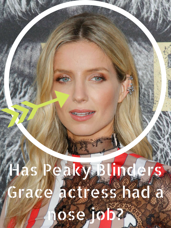 Annabelle Wallis Nose Job Plastic Surgery Before and After