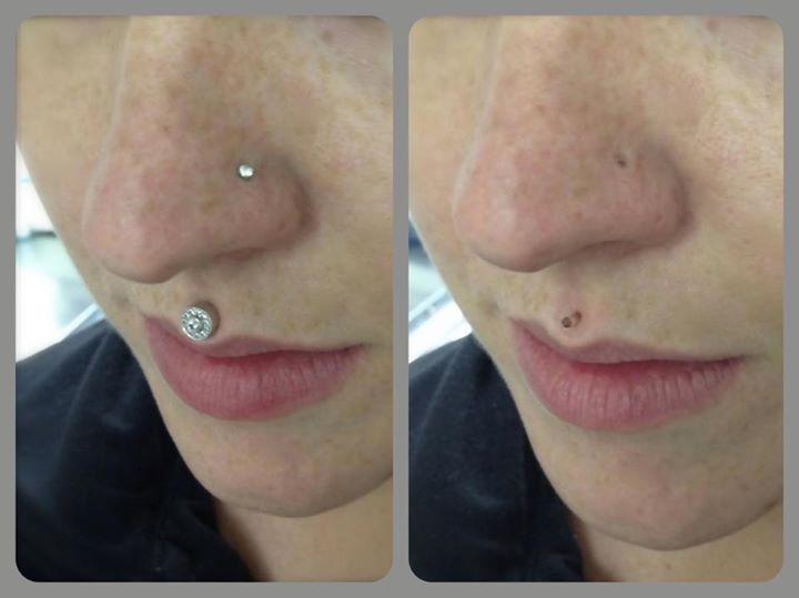 Association Of Professional Piercers Medical Imaging Work