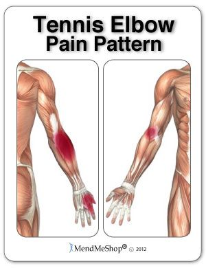 Steps You Can Take To Prevent The Onset Of Tennis Elbow Or Golfers Elbow Tennis Elbow Relief Golfers Elbow Tennis Elbow