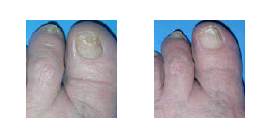 Laser treatment solution for fungal nail infection. Traditional ...