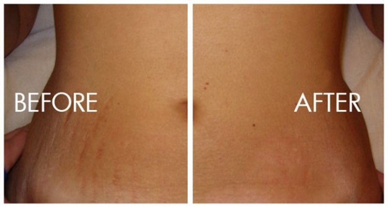 Stretch Mark Laser Removal For The Home Laser Stretch