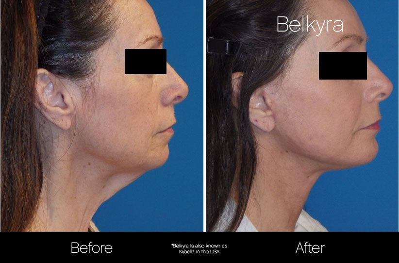Pin by Darcy Travers on Makeup & Beauty | Botox fillers
