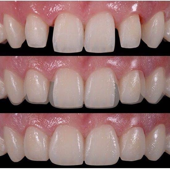 Dentaltown Dental Veneers Sometimes Called Porcelain Veneers Or Dental Porcelain Laminates Are Waf Saude Bucal Tratamento Dentario Atendimento Odontologico