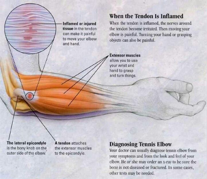 Tennis Elbow Pathology Tennis Elbow Treatment Tennis Elbow Massage Therapy