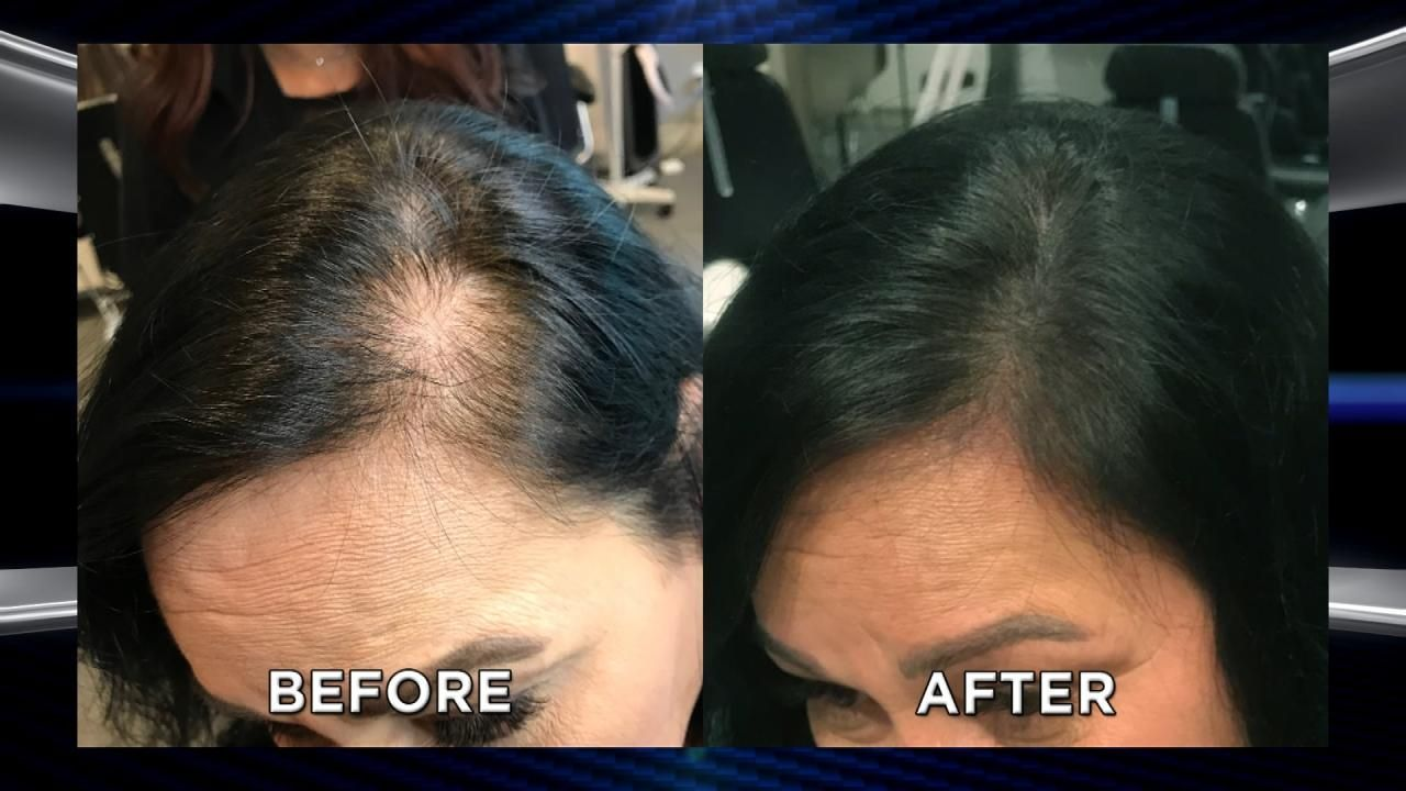 Could Microblading Your Scalp Help With Hair Loss 2 Hair Loss Women Hairstyles For Thin Hair Thick Hair Remedies