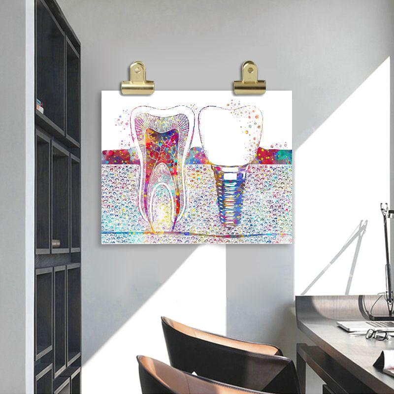 Tooth Implant Print Dentist Gift Dental Clinic Wall Decor Hygienist Office Art Medicine Canvas Paintin Dental Wall Art Office Wall Decor Canvas Art Wall Decor