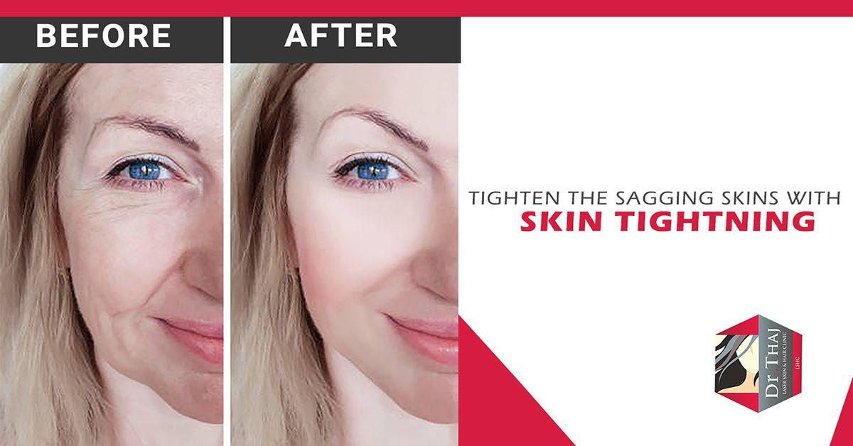 Anti Skin Ageing Skin Tightening Treatments Skin Tightening Skin Tightening Procedures Skin Tightening Treatments