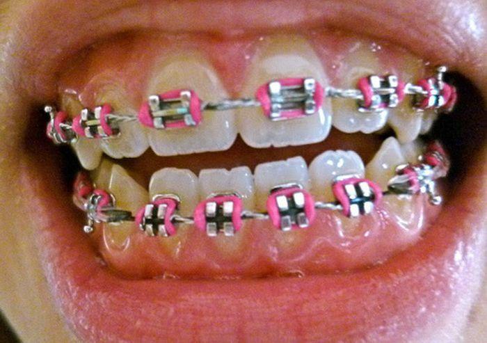 Pink Braces Colors Teeth Braces Ideas Braces Colors Pink Braces Teeth Braces