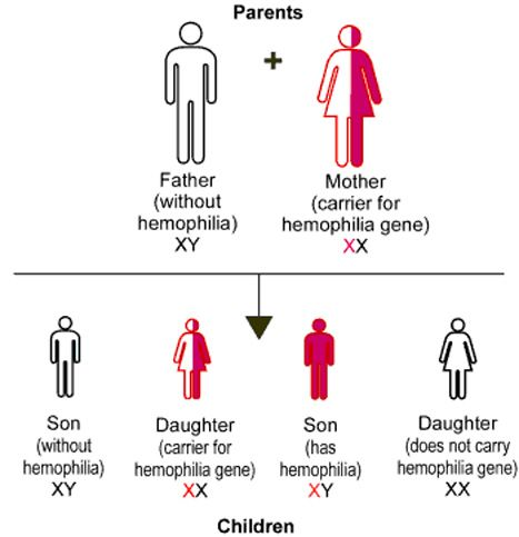 Hemophilia. Carriers of genes can be bleeders too