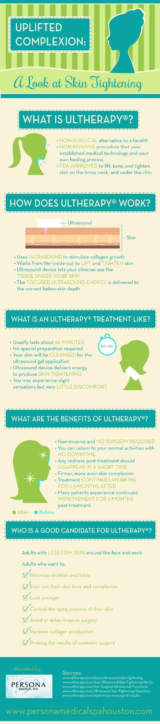 After an Ultherapy treatment, a patient can enjoy firm, more even skin. The treatment continues to work for 2-3 months, with some patients enjoying continued improvement for up to 6 months. Learn more at http://www.chronosbhw.com/ultherapy/ #ultherapy #lookyoung #skincare