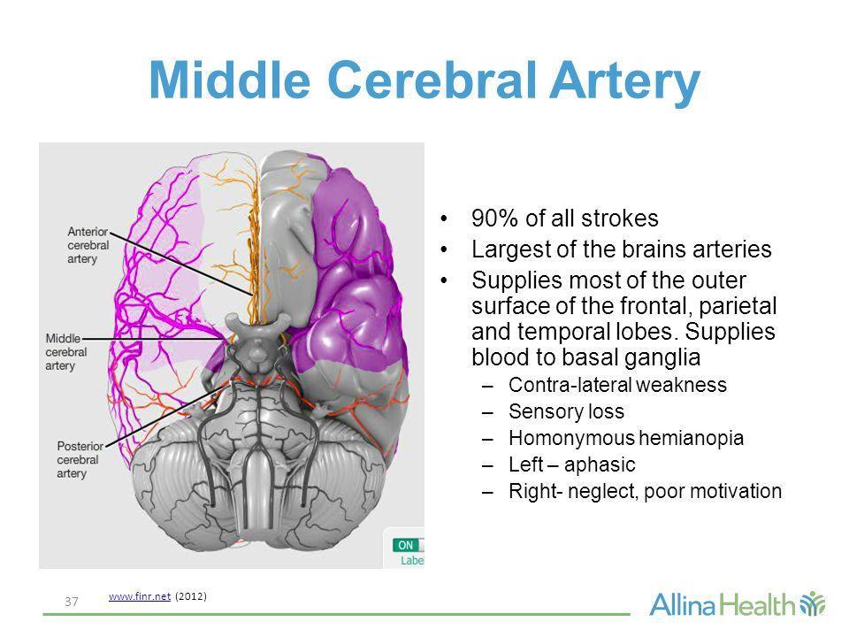 Image result for middle cerebral artery stroke symptoms | Boards ...