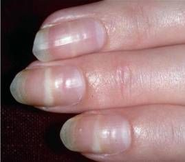 Mees Lines Nail Problems White Spots On Nails Nails