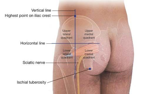 location of the iliac crest | health and fitness | Pinterest | Medicine