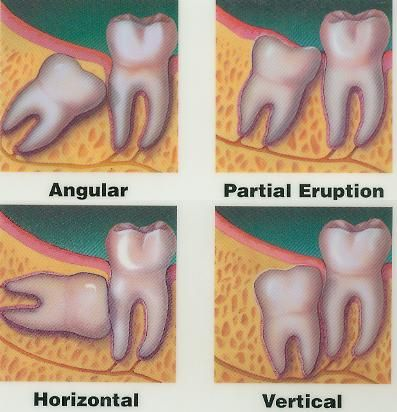 Wisdom teeth removal, After Wisdom Tooth Extraction, Wisdom of Having That Tooth  Removed, Wisdom Tooth Extraction Surgery