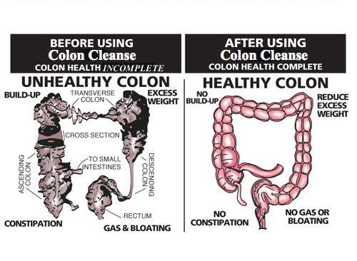 colon cleanse provoacă pierderea în greutate