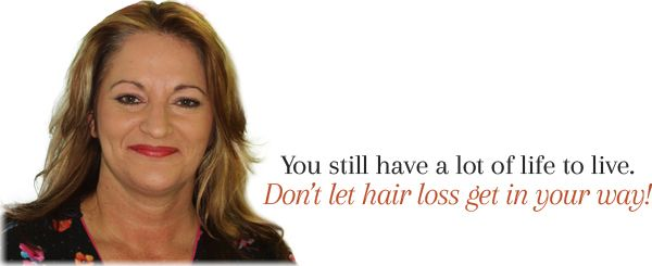 female hair loss and aging and menopause - nashville tn - hpihair, Skeleton