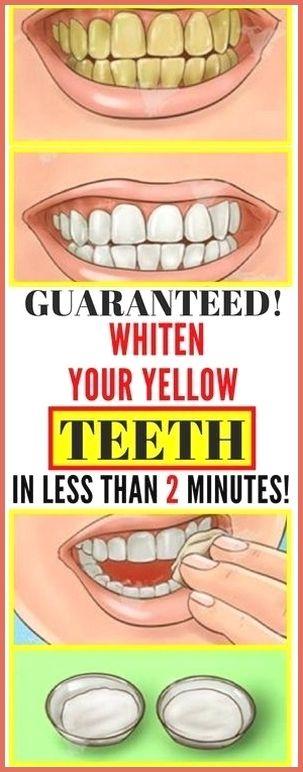 Guaranteed! Whiten Your Yellow Teeth In Less Than