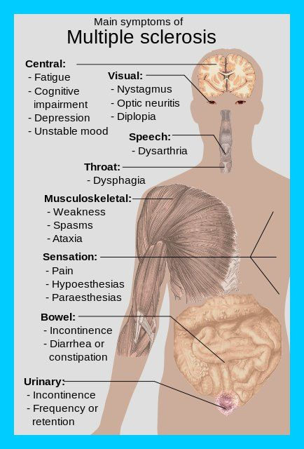 Multiple Sclerosis Rehabilitation is considered a necessary component of comprehensive, quality health care for people suffering…