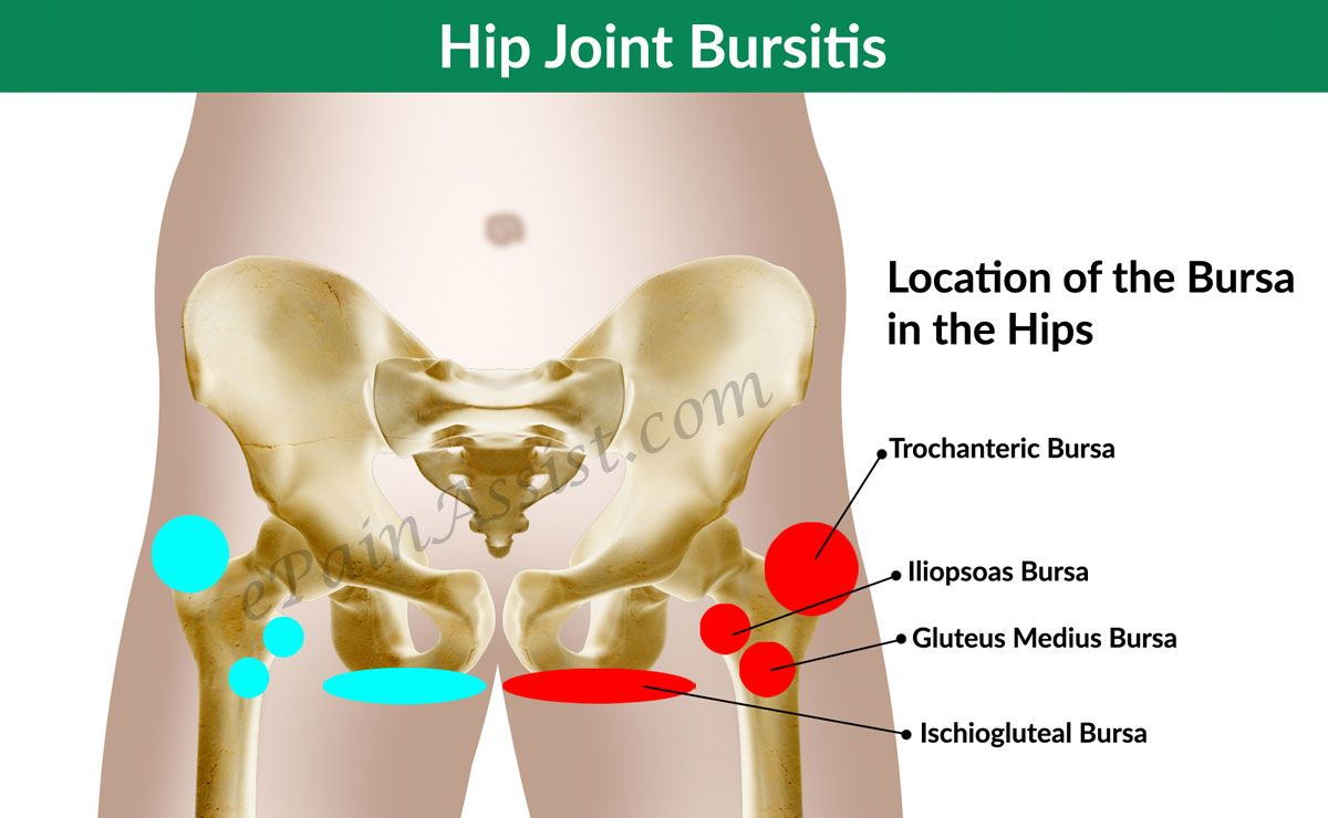 Hip Joint Bursitis & Tendinitis- Causes, Signs, Symptoms, Diagnosis ...
