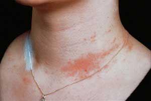O Sabor Do Bem Estar 23 Alergia Ao Niquel Beleza Q B Remedios Para Alergia Alergia Bijuterias