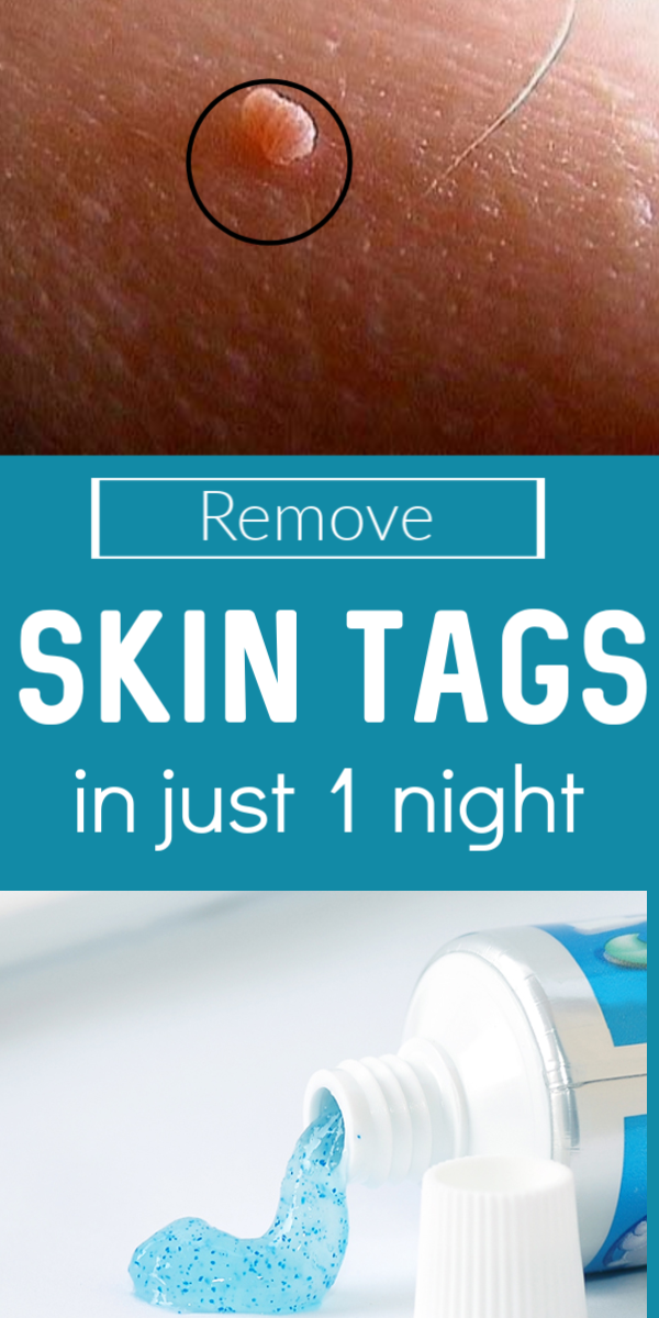Natural treatment to remove skin tag in just 1 night #skintagremedy