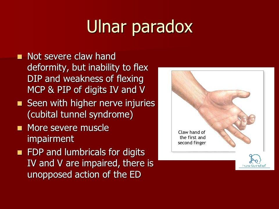 Claw Hand & Ulnar Paradox | Anatomy | Pinterest | Paradox and Ulnar ...