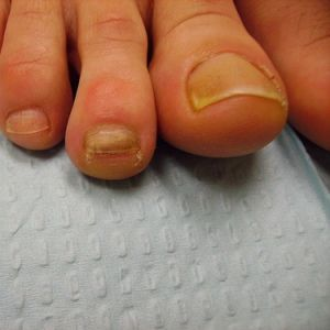What Your Feet Say About Your Health | Thick, yellow toenails Thick ...