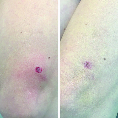 BEFORE Puncture wound to knee AFTER 7 days of daily RESTORE | Before