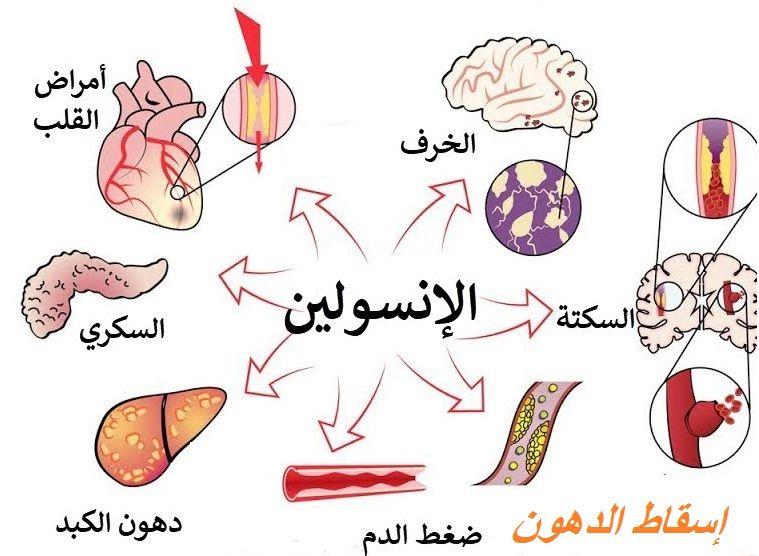 الأنسولين هرمون ينظم استخدام الجسم للسك ر والأغذية الأ خرى وي نتج في خلايا متخصصة في جزء من البنكرياس وفي حالة نقصه لا يستطيع الجسم است