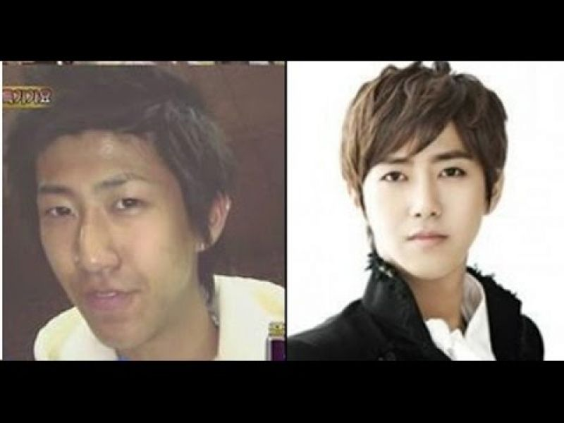 Korean celebrity plastic surgery before and after