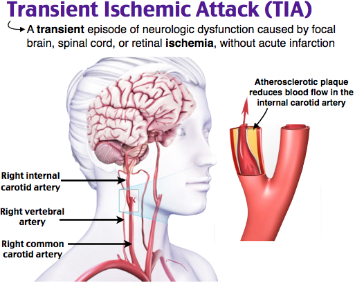 Image result for Transient Ischemic Attack