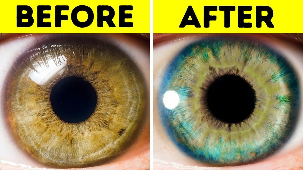7 things that can change your eye color eye color facts