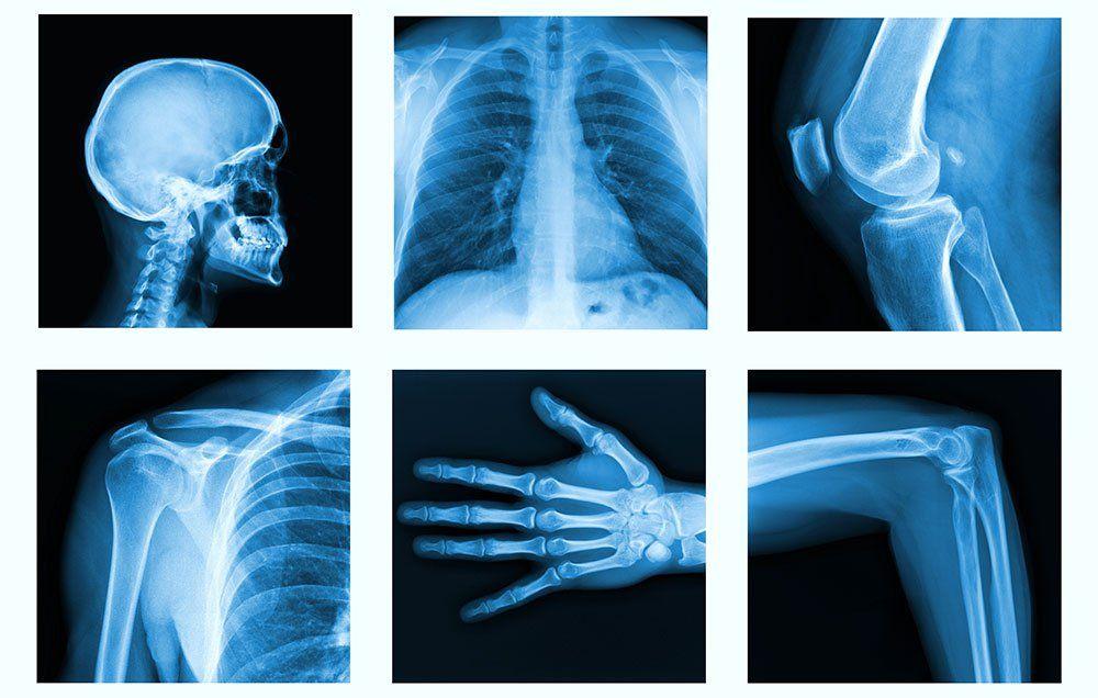 24++ Asheville arthritis osteoporosis center pa information