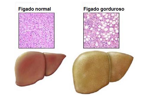O fígado gorduroso se tornou um dos principais problemas médicos da atualidade. Este problema tem como uma de suas principais causas o estilo de vida...