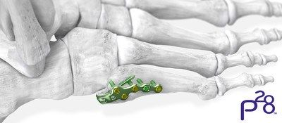 2ce6230da27 Paragon 28® launches 5th metatarsal fracture specific plating system ...