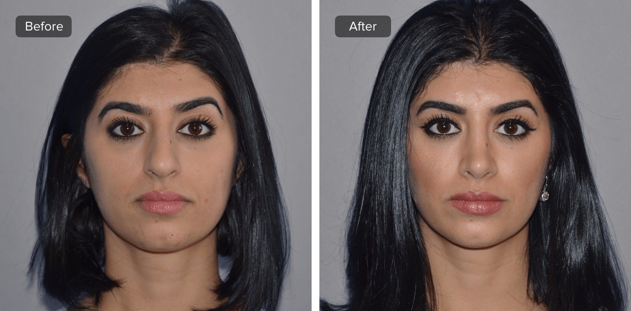 Recovery Time To Expect For A Rhinoplasty Rhinoplasty Rhinoplasty Recovery Aesthetic Dermatology