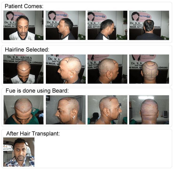 What Are Benefits of NaturalLooking Hair Transplants