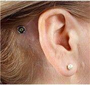 17 Bone Conduction For Hearing Loss Ideas Conduction Hearing Loss Hearing