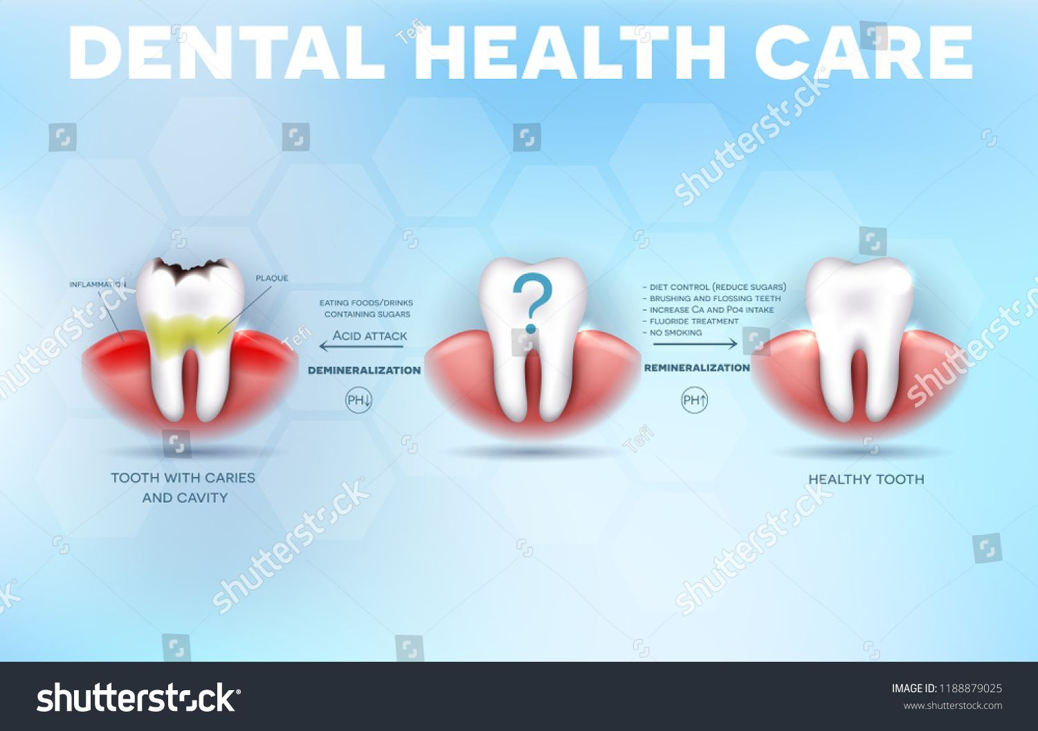 Fehlerhafte Zahnarztpraxis London #dentiste #DentalCrownTips   – Dental Crown Tips