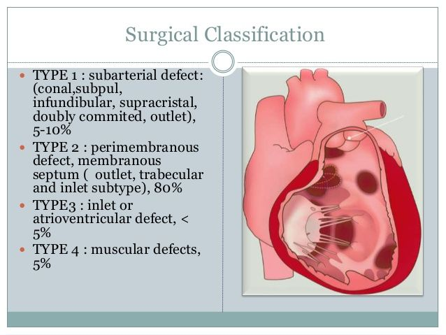 Morphology Of Perimembranous Ventricular Septal Defects Google