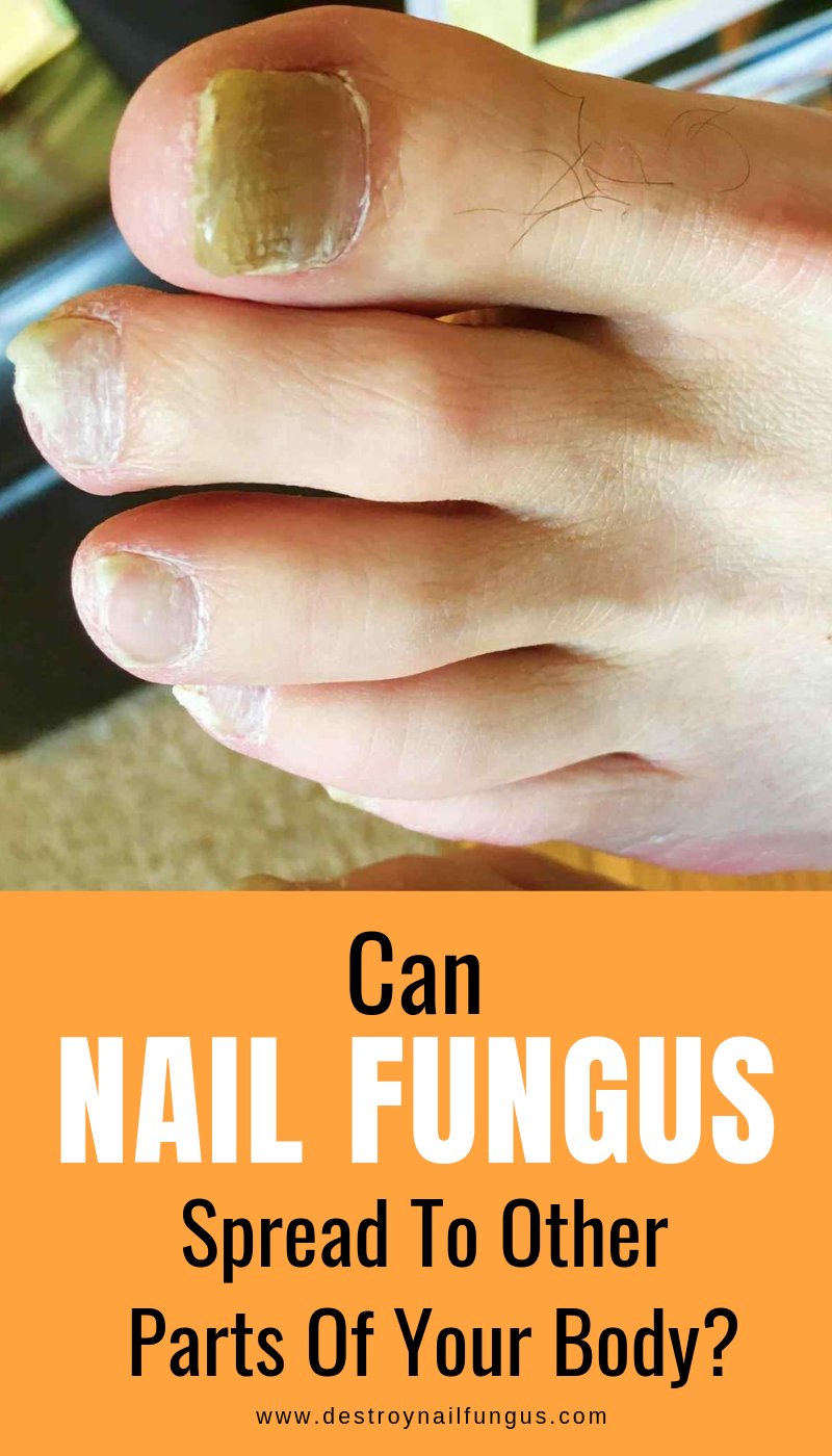 Toenail Fungus Also Known As Onychomycosis Is A Terrible Disease That Affects Millions Of People Worldwide It Cau Nail Fungus Toenail Fungus Nail Fungus Cure