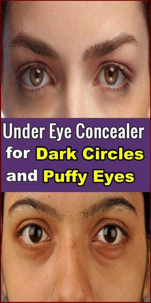 Under Eye Concealer for Dark Circles and Puffy Eyes ?? in ...