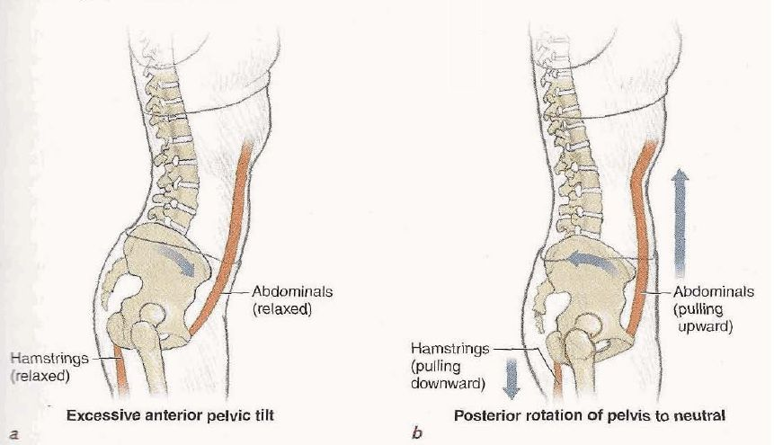 Abdominal-hamstring force couple. (a) Abdominals and hamstrings are ...