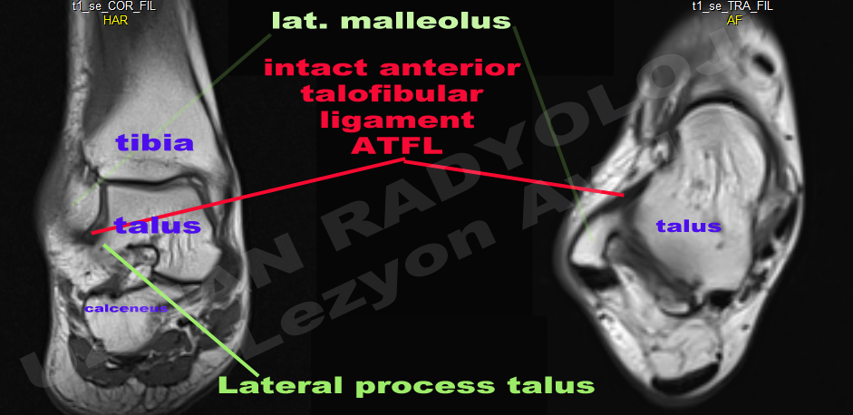 Mri Ankle Ligaments Google Search Anatomy Imaging Ankle